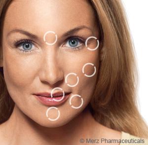 Behandlungsareale im Gesicht
